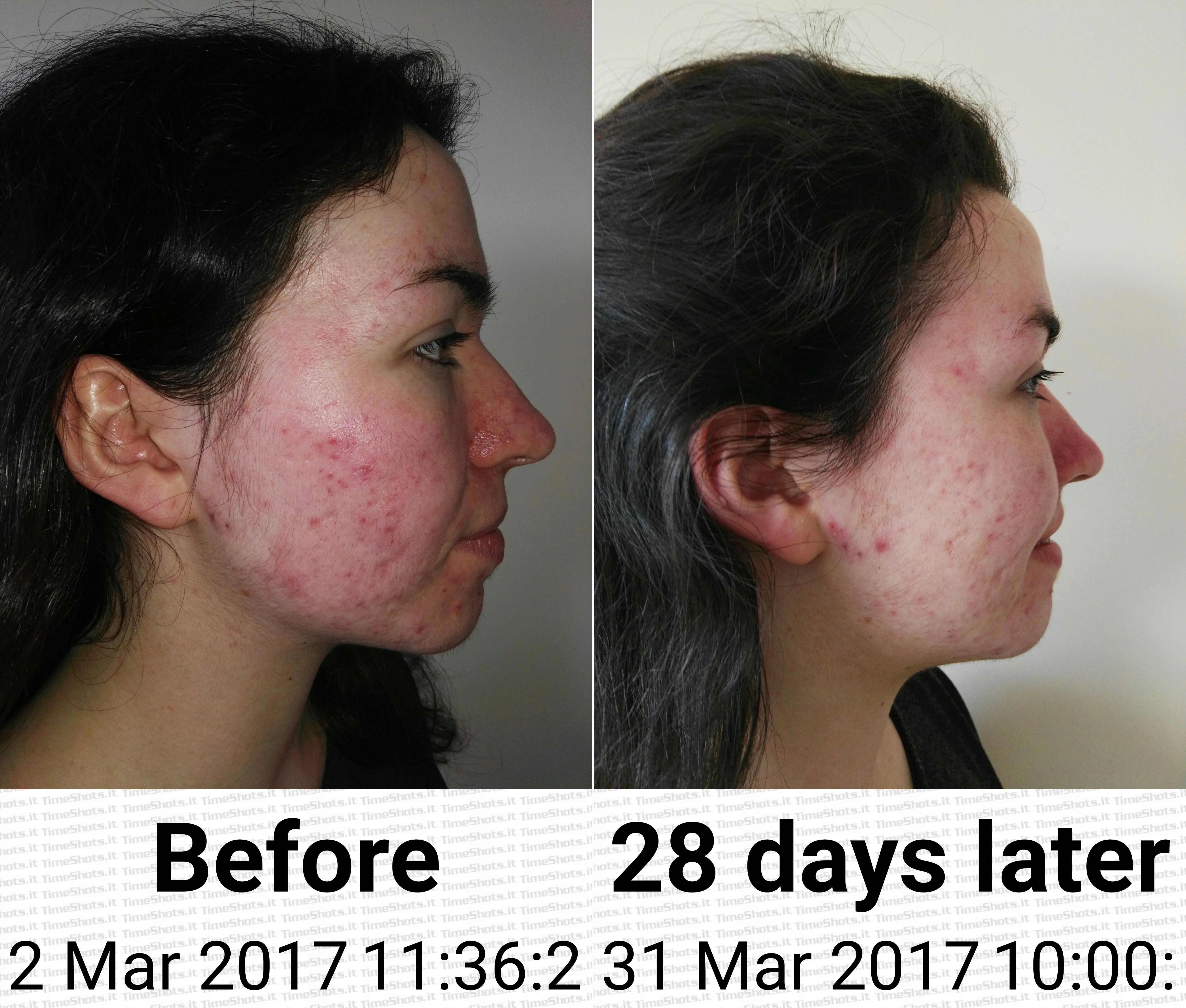 Will facial acupuncture help acne revolutionary activities